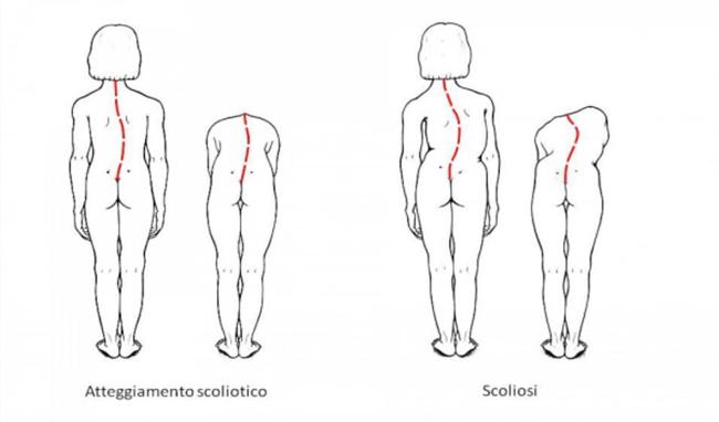 scoliosi Scoliosi e postura